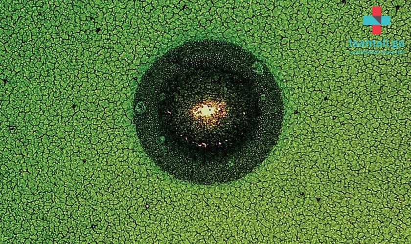 მარდალეიშვილის სამედიცინო ცენტრის მხარდაჭერით ადამიანის უჯრედების სურათების საქველმოქმედო გამოფენა გაიმართა